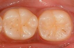 Odontologia conservadora Barcelona 2 Casos Clínicos