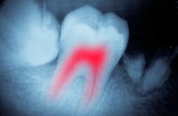 endodoncia Casos Clínicos