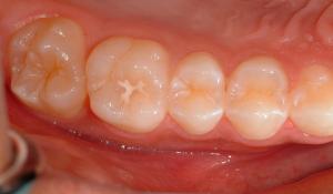 Servicios odontologia conservadora Barcelona