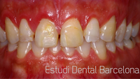 Esthetic dentistry for Estudi dental barcelona