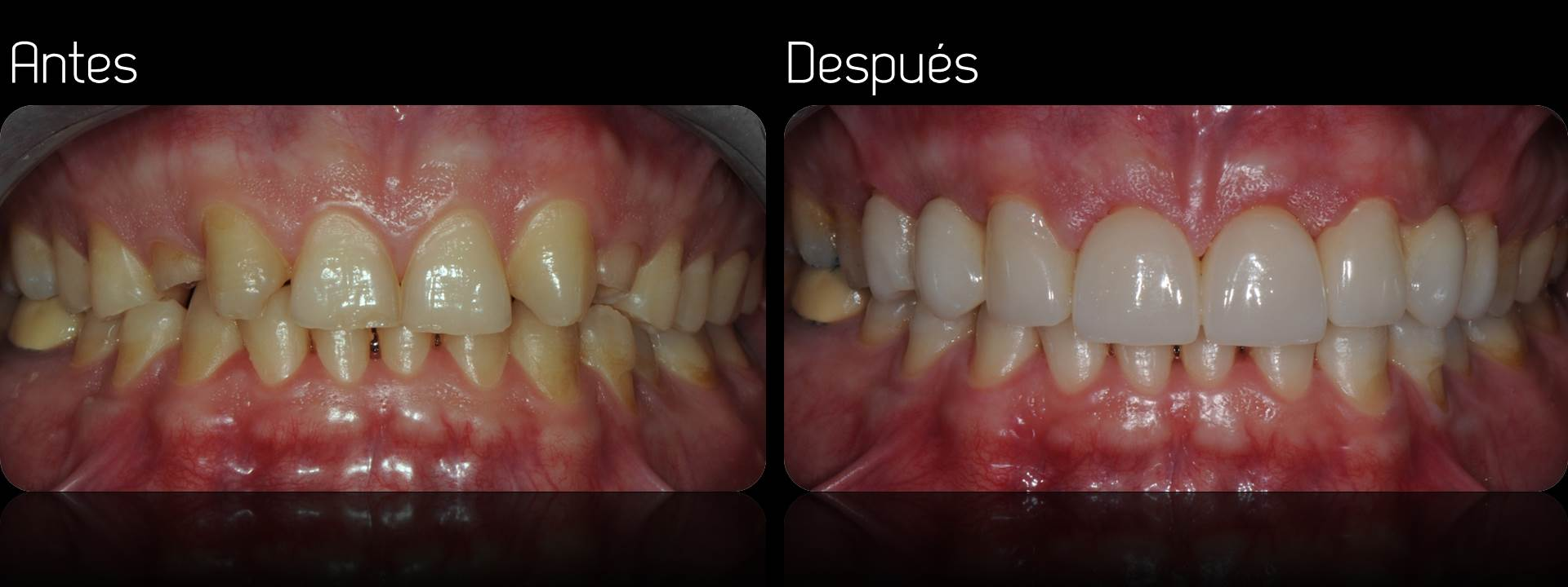 Porcelain crowns case 3 estudi dental barcelona for Estudi dental barcelona