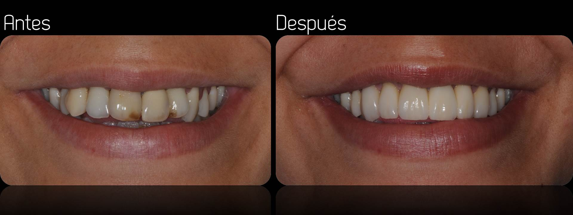 Porcelain crowns case 1 estudi dental barcelona for Estudi dental barcelona