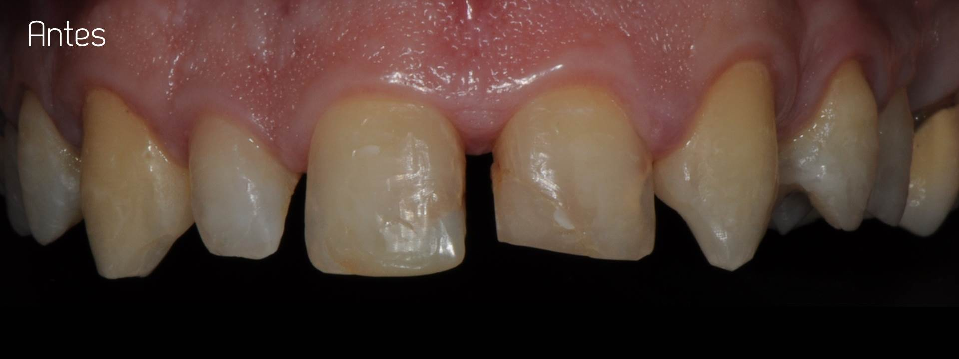 Porcelain crowns case 2 estudi dental barcelona for Estudi dental barcelona