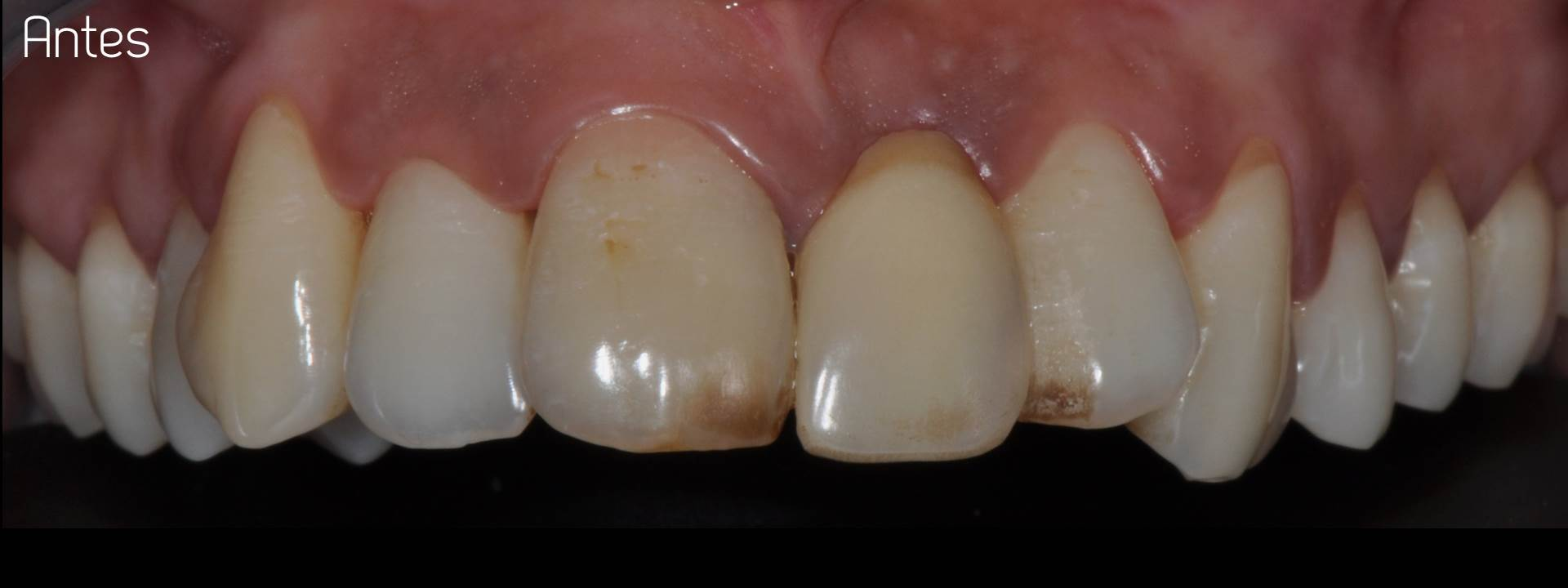 Totally porcelain crown estudi dental barcelona for Estudi dental barcelona