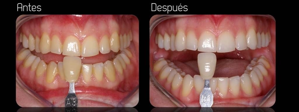 Dientes blancos con Blanqueamiento dental en Barcelona
