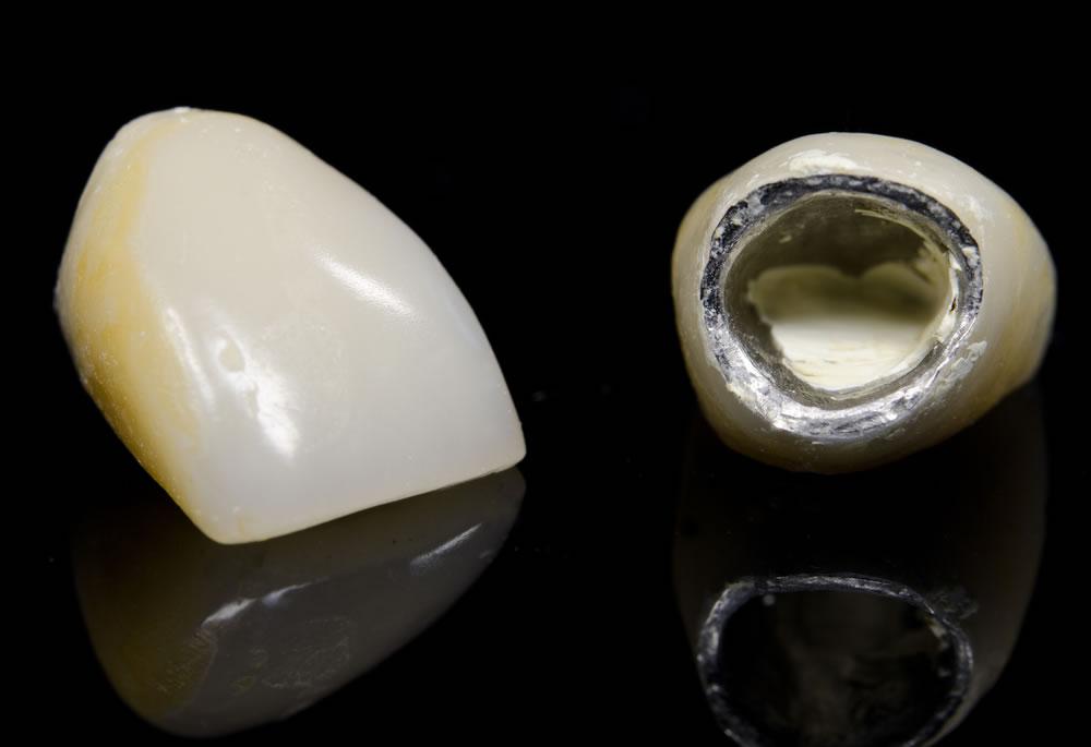 u00bfzirconio o metal en coronas sobre implantes
