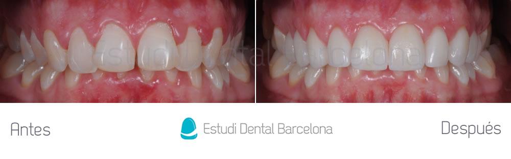 dientes detr s de otros estudi dental barcelona