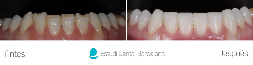 Defectos en el esmalte y composite viejo estudi dental for Estudi dental barcelona