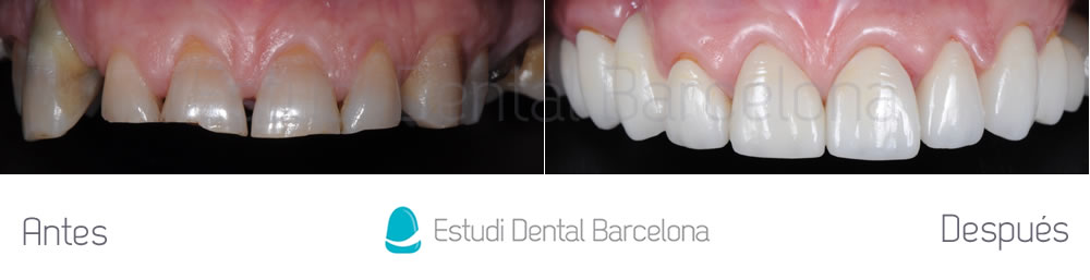 Desgaste dental y enc as retraidas estudi dental barcelona for Estudi dental barcelona