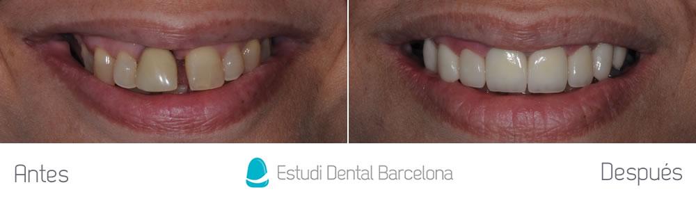 Microcarillas Y Carillas Lumineers Sin Tallado Dental Edb
