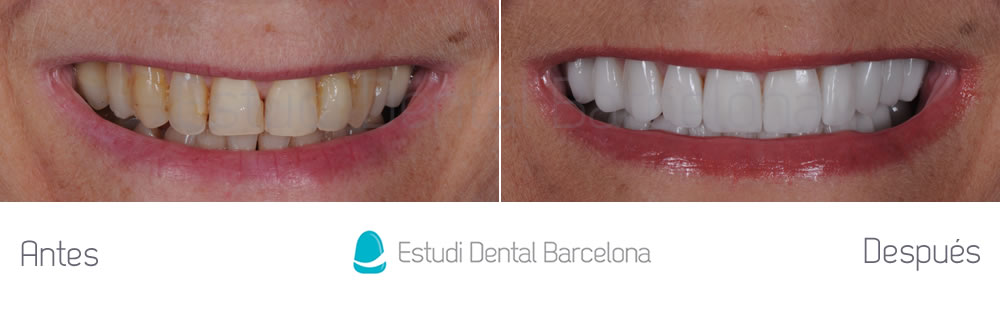 Caso cl nico dientes envejecidos edb for Estudi dental barcelona