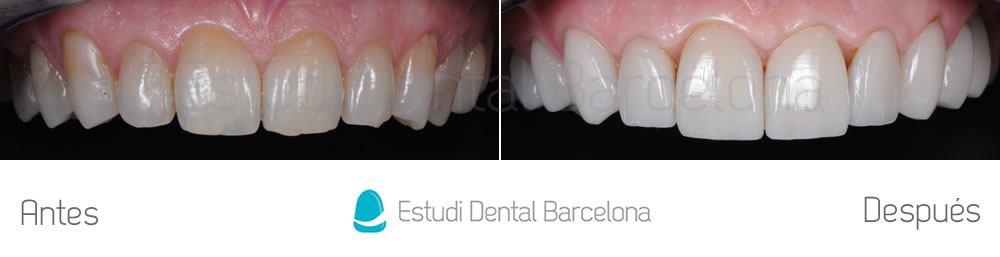 Canting y rejuvenecimiento de sonrisa estudi dental for Estudi dental barcelona