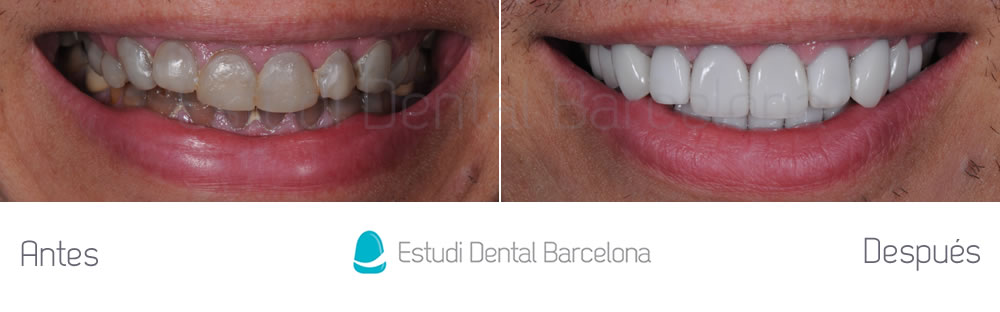 Caso cl nico dientes oscuros y tetraciclinas estudi for Estudi dental barcelona