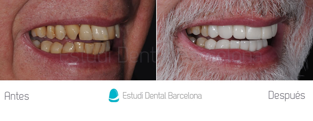Malposici n dental y dientes amarillos estudi dental for Estudi dental barcelona