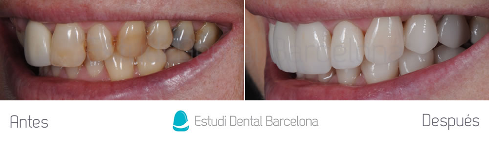 Malposici n y rejuvenecimiento dental estudi dental for Estudi dental barcelona