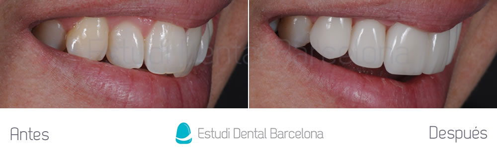 Dientes torcidos y carillas de porcelana estudi dental for Estudi dental barcelona