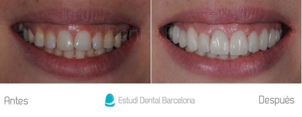 Dise o de sonrisa con carillas de porcelana estudi for Estudi dental barcelona