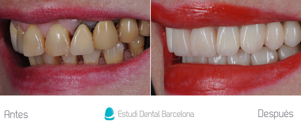 Puente ant guo y rejuvenecimiento dental estudi dental for Estudi dental barcelona