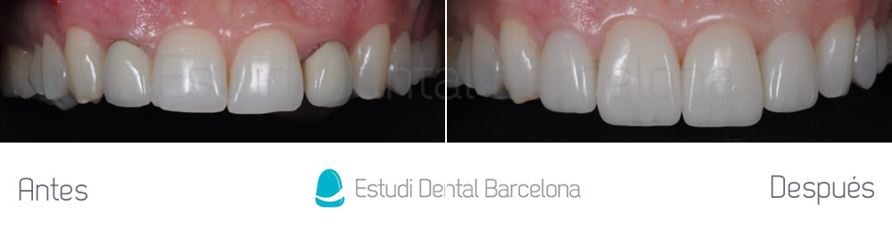 Coronas viejas y carillas de porcelana estudi dental for Estudi dental barcelona