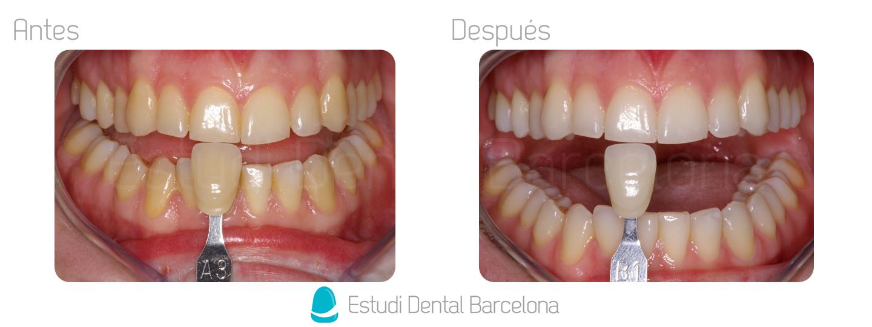 Blanqueamiento en Casa Clínica Dental Barcelona