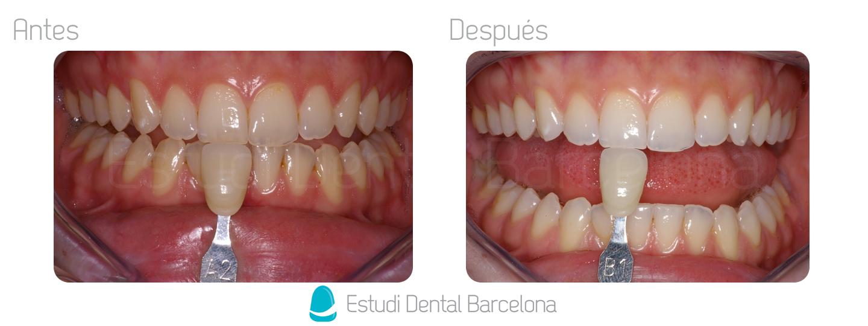 Blanqueamiento en Clínica Dental Barcelona
