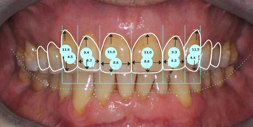 Bruxismo y rejuvenecimiento dental - Caso de carillas - proporciones