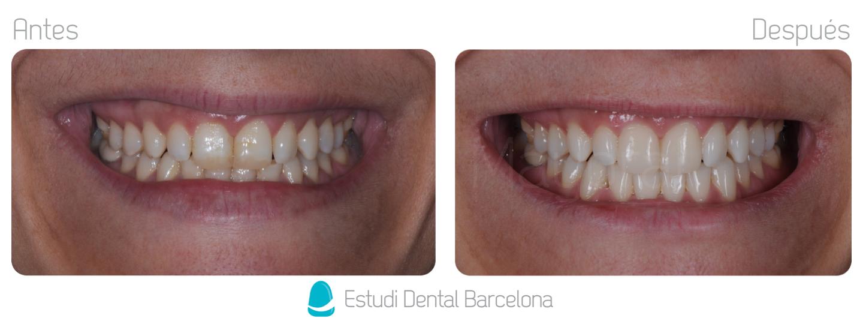 Carillas de Composite Clinica Dental en Barcelona