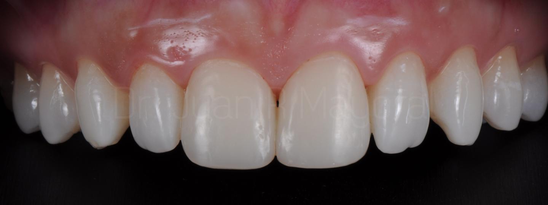 Carillas de Composite Estudi Dental Barcelona