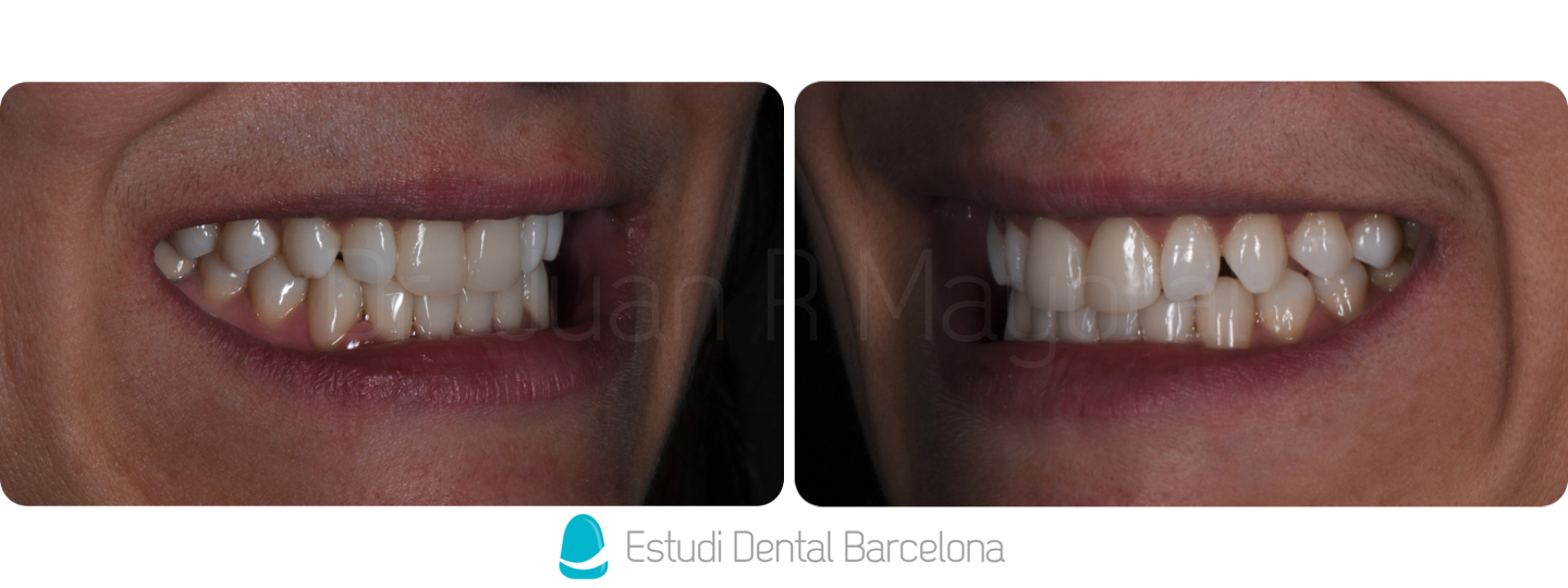 Carillas de composite tipos y precios estudi dental for Estudi dental barcelona