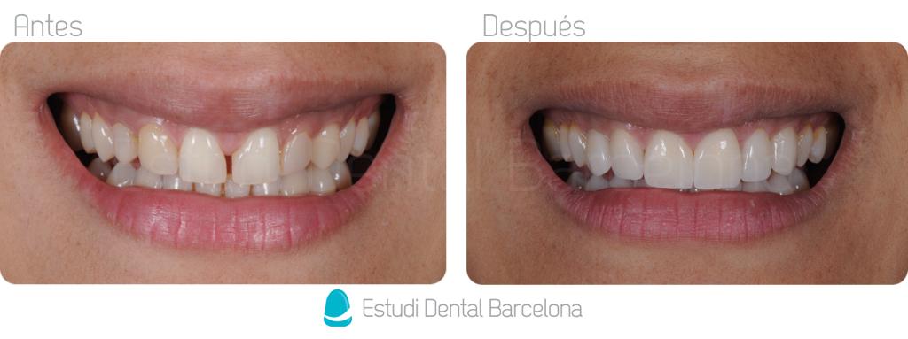 Antes y después Carillas de Porcelana Barcelona II