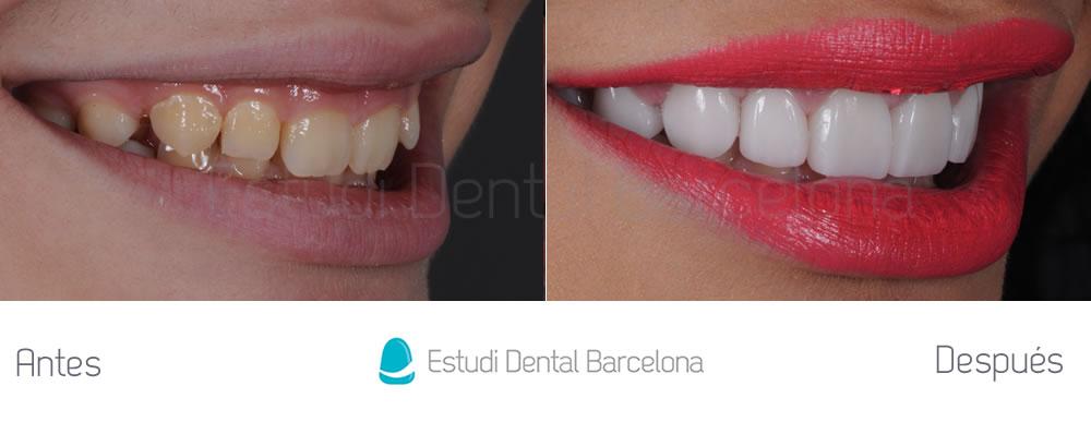 Caso carillas dentales para exceso de encias derecha