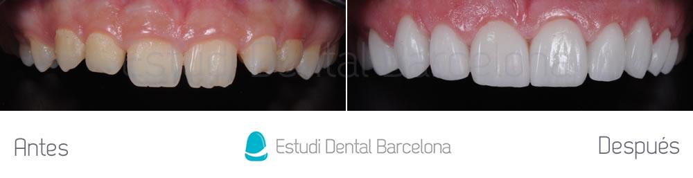 Caso carillas dentales para exceso de encias frente superior