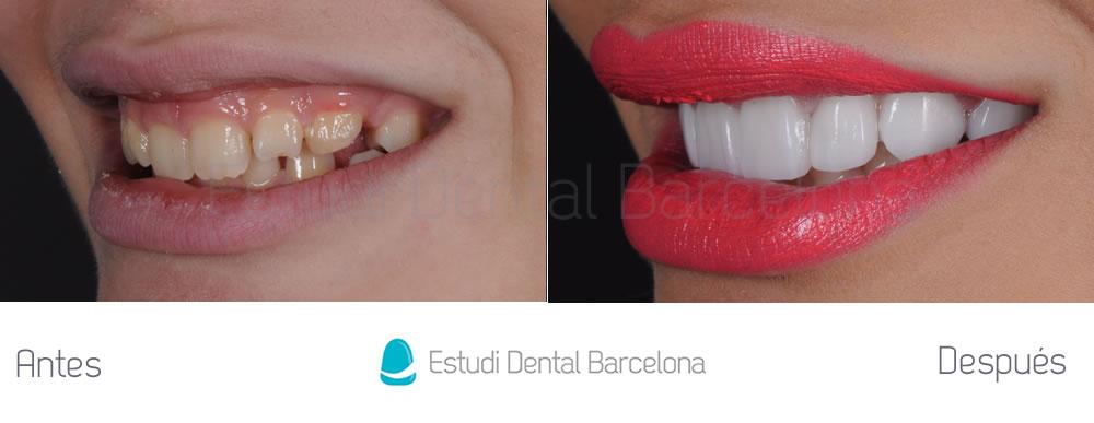 Caso carillas dentales para exceso de encias izquierda
