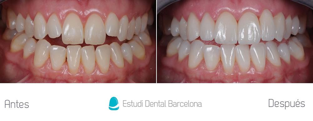 Antes y después malposición dientes superiores apretando