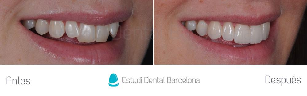 Antes y después malposición dientes superiores derecho