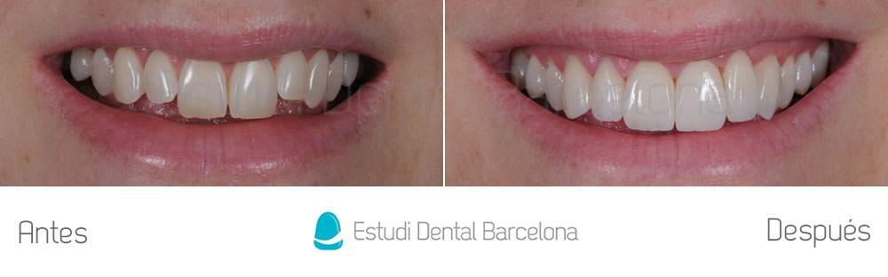 Caso cl nico malposici n superior con carillas for Estudi dental barcelona