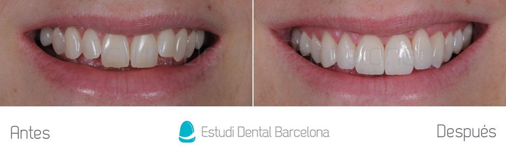 Antes y después malposición dientes superiores frente