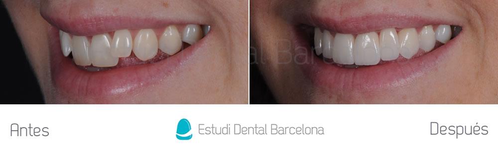 Antes y después dientes superiores izquierda