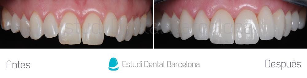 Antes y después dientes superiores carillas