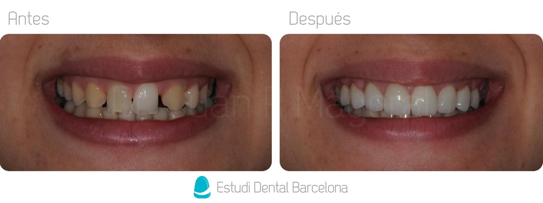 Cierre de Diastemas Clinica Dental en Barcelona