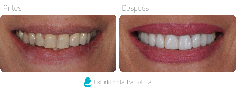 Dental crowns Barcelona White Teeth