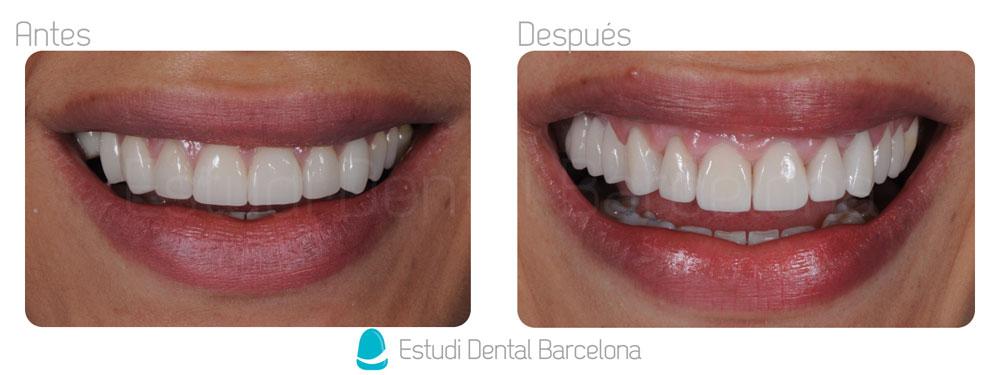 Dental Crowns Barcelona Porcelain Veneers