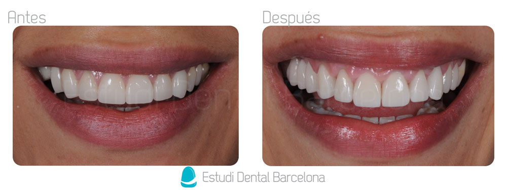 Coronas Dentales Barcelona Fundas de Porcelana