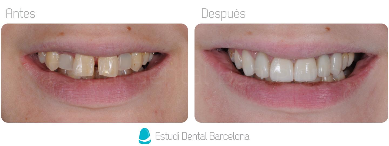 Coronas Dentales Zirconio Barcelona