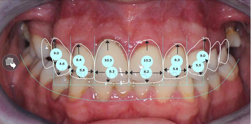 Coronas rotas y antiguas- caso clinico carillas dentales - proporciones