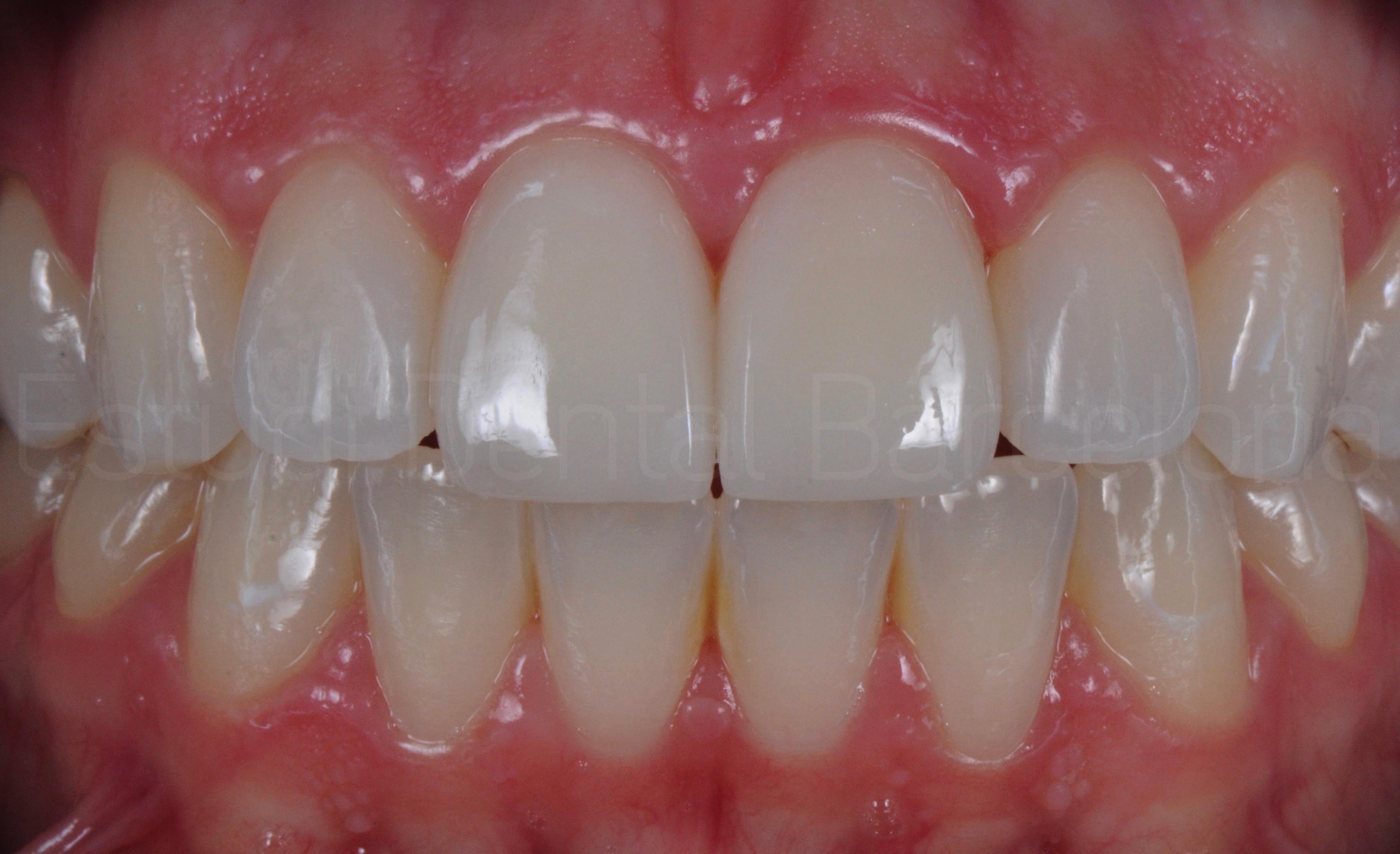 Carillas sin Tallado Dental