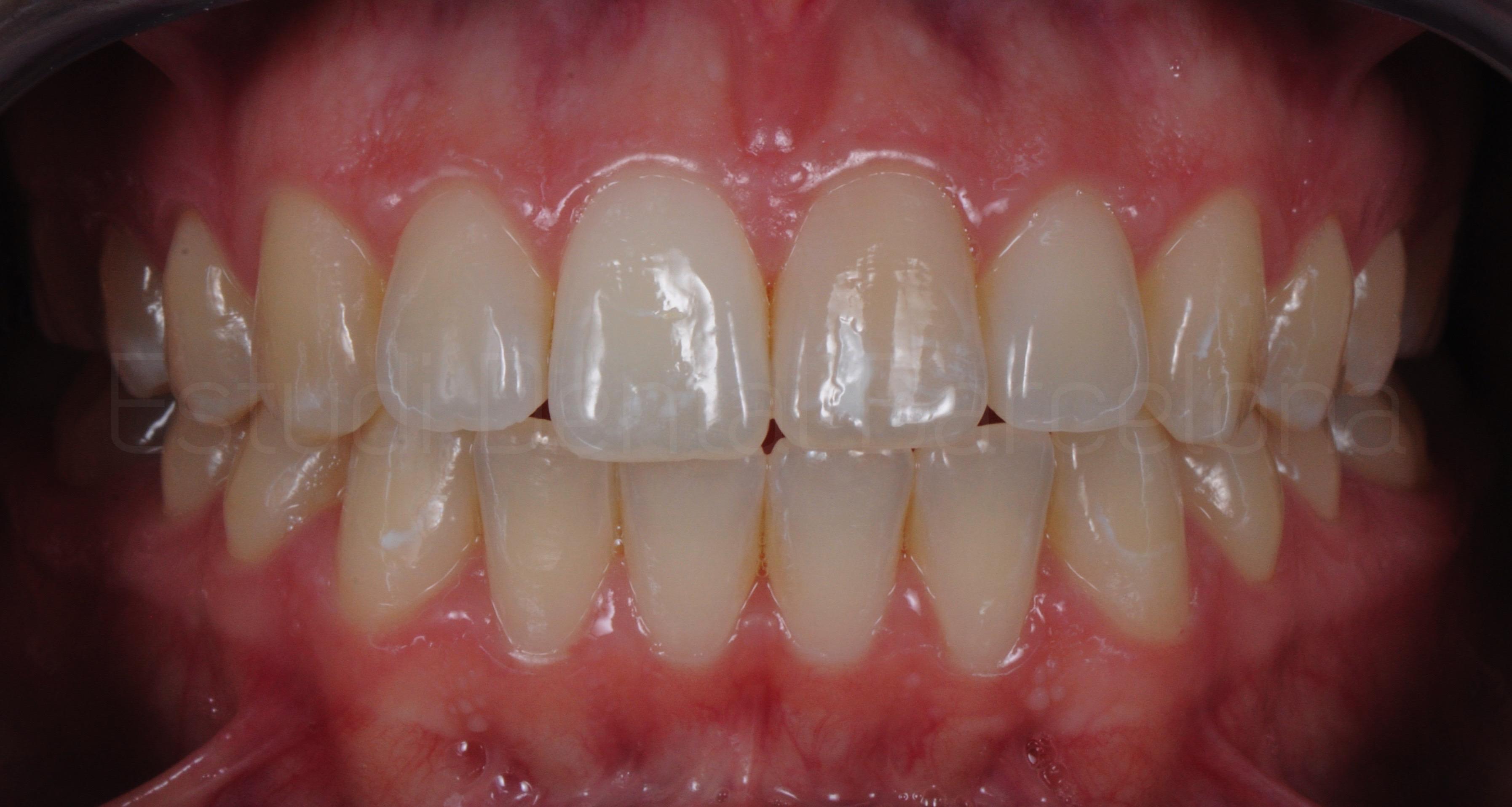 Carillas sin Tallado Dental Antes