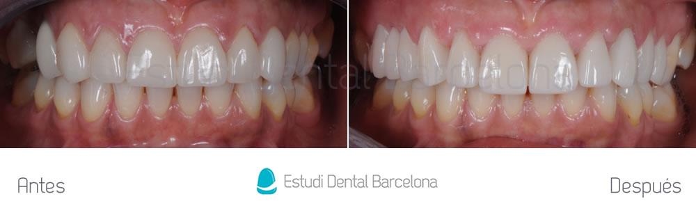 Dientes cortos y ausencia dental - Antes y después carillas dentales - apretando