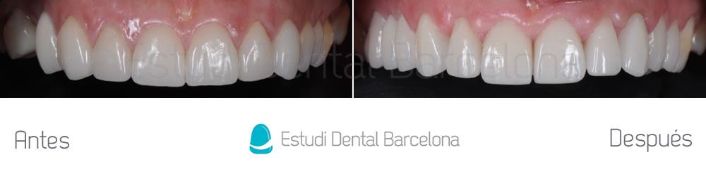 Dientes cortos y ausencia dental - Antes y después carillas dentales - arcada superior