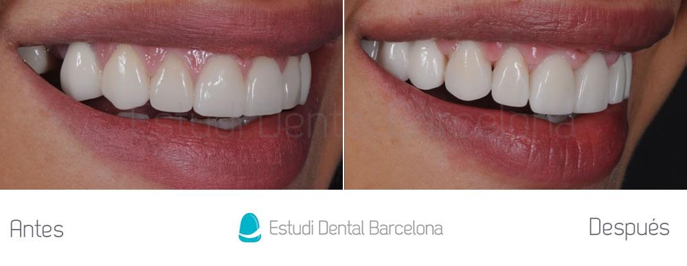 Dientes cortos y ausencia dental - Antes y después carillas dentales - derecha